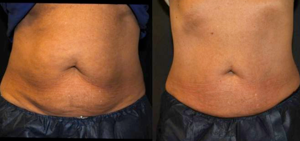 coolsculpting-maine